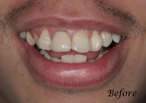 San-Francisco-California-Family-Teeth-Bleaching-Dentistry-1