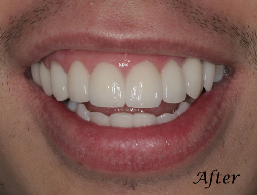 San-Francisco-California-Family-Teeth-Bleaching-Dentistry-2