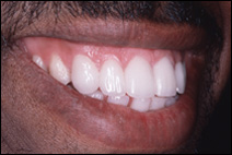 dental gaps after treatment by cosmetic dentist