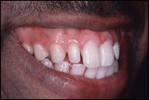dental gaps before treatment by cosmetic dentist
