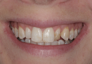 conservative-cosmetic-dentistry-with-bleaching-and-porcelain-veneers-before