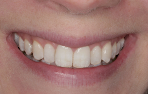 conservative-cosmetic-dentistry-with-bleaching-and-porcelain-veneers-after