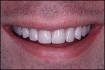 after treatment by cosmetic dentist