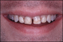 before treatment by cosmetic dentist