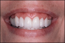 straightened teeth after cosmetic dentist