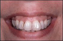 misaligned teeth before cosmetic dentist