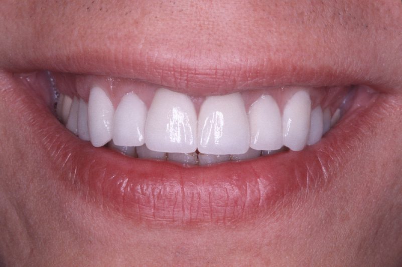 repaired defective fillings
