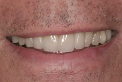 natural-teeth-with-porcelain-veneers-1-aft
