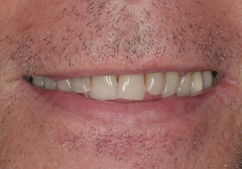 natural-teeth-with-porcelain-veneers-1-bef