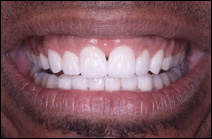 after cosmetic dental procedure