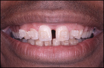 before cosmetic dental procedure