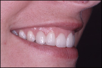 straighter teeth after smile makeover