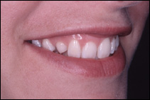 crowded teeth before smile makeover