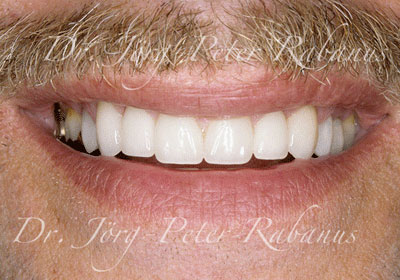 Aged teeth after cosmetic dentistry