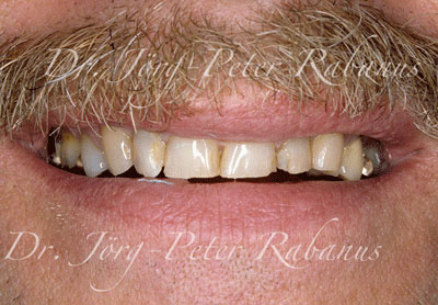 Aged teeth before cosmetic dentistry