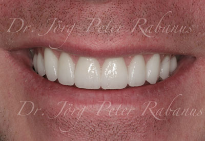 Porcelain Veneers With Typical Aesthetic Characteristics
