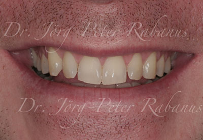 Porcelain Veneers Without Typical Aesthetic Characteristics