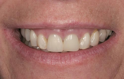 before porcelain veneers for gummy smiles