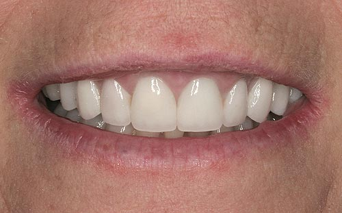 porcelain veneers san francisco for gummy smiles