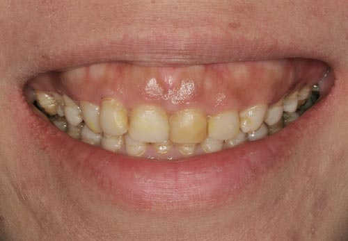 porcelain veneers san francisco stained teeth gummy smile