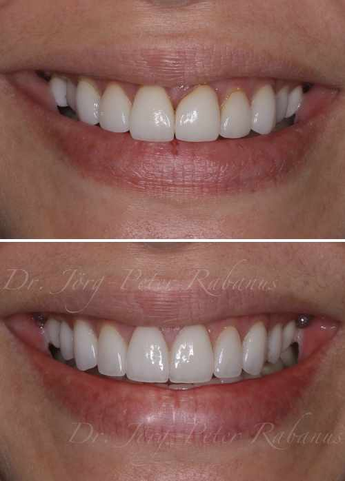 porcelain veneers san francisco before and after