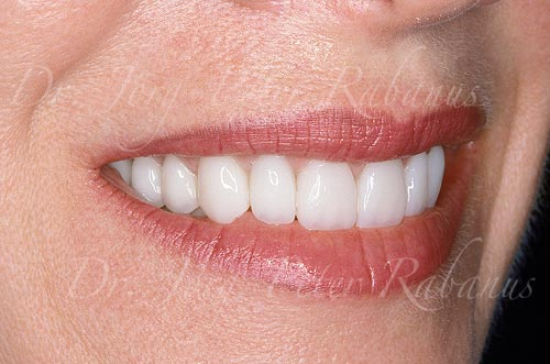 smile makeover of worn teeth right side