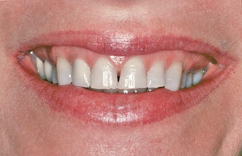 worn teeth before smile makeover