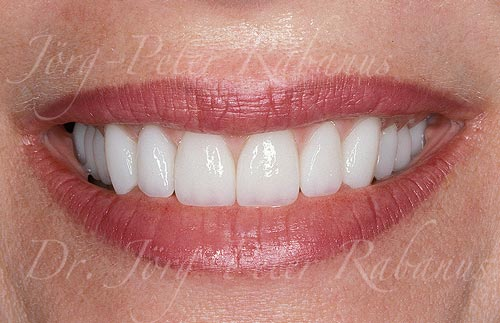 smile makeover of worn teeth