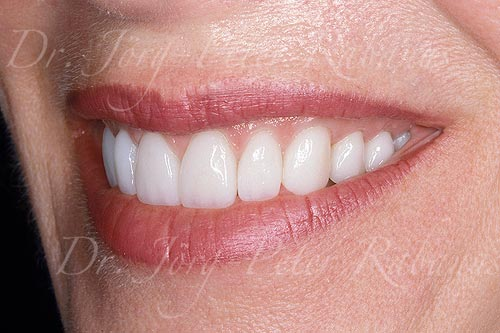 smile makeover of worn teeth left side