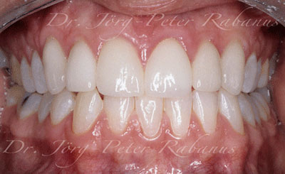 stained and misaligned teeth after smile rejuvenation