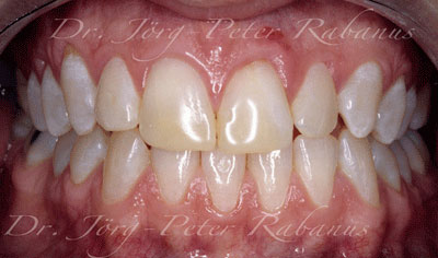 stained and misaligned teeth before smile rejuvenation