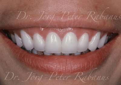 Stained teeth after placement of porcelain laminates