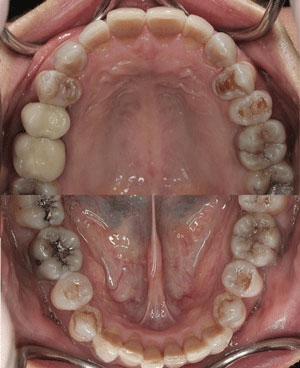 Tetracycline-Associated Dental Hypoplasia-2