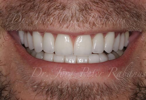 best porcelain veneers sf