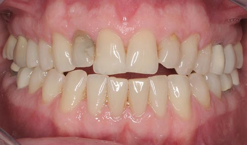 best porcelain veneers san francisco are natural 3
