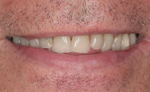 best porcelain veneers san francisco are natural 1