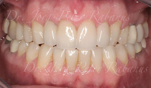 best porcelain veneers san francisco are natural 4a