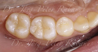 back teeth after placement of tooth-colored cosmetic fillings