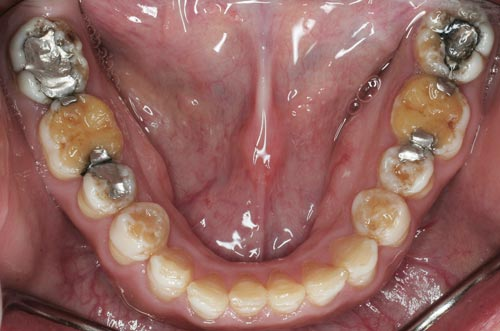 defective enamel lower teeth