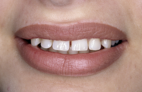 dental-diastemas-are-spaces-between-teeth