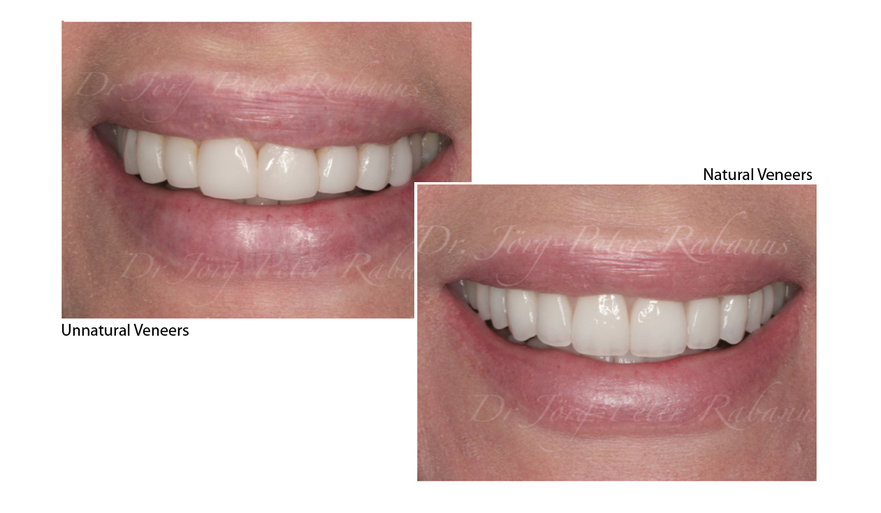 porcelain veneers look natural