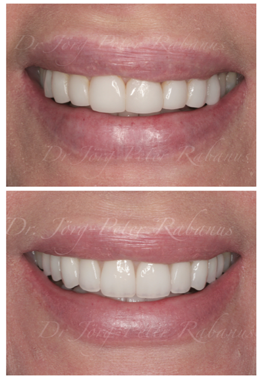 natural porcelain veneers
