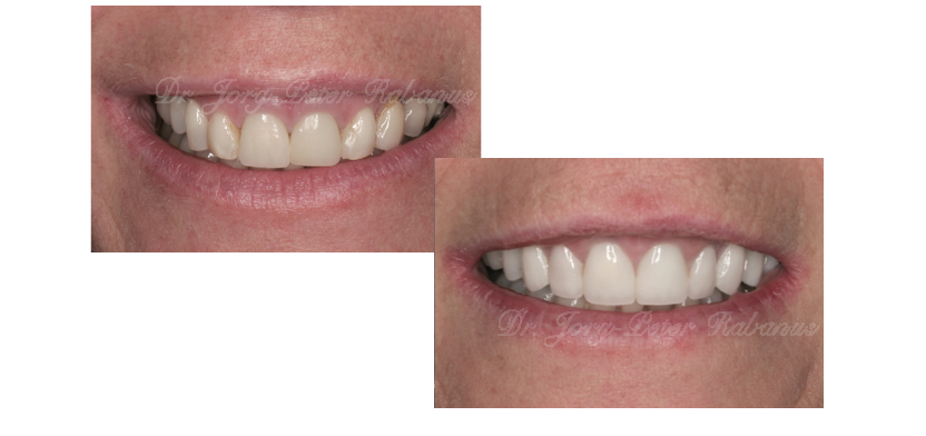 Porcelain Veneers, Smile Design, Gum Lift