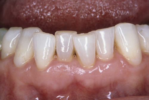 misaligned and crowded lower anterior teeth
