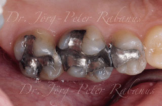 back teeth with old filling before placement of porcelain crown