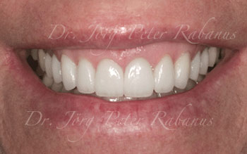 After Porcelain Veneers, Cosmetic Dentist