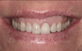 Before Porcelain Veneers, Cosmetic Dentist San Francisco