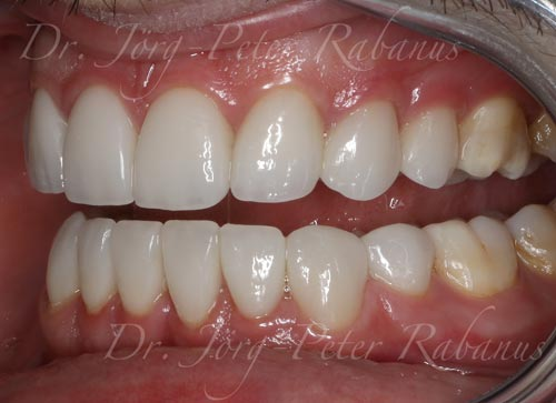 smile makeover after replacement of porcelain veneers and gum lift