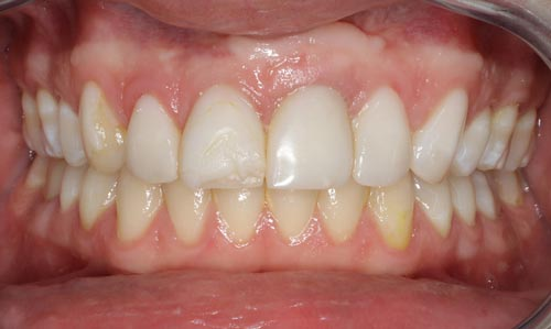before-smile-design-with-porcelain-veneers-on-dental-implant