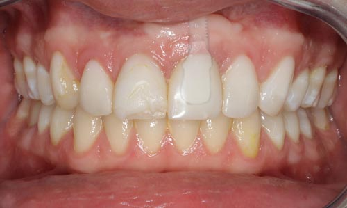 porcelain-veneers-and-dental-implant-before